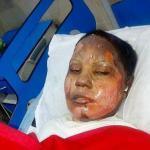 Muslimimies sytytti kristityn naisen palamaan Pakistanissa