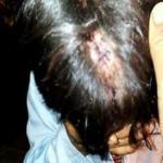 Hmong-kansan kristittyjä joutunut sairaalahoitoon yllätyshyökkäyksen seurauksena