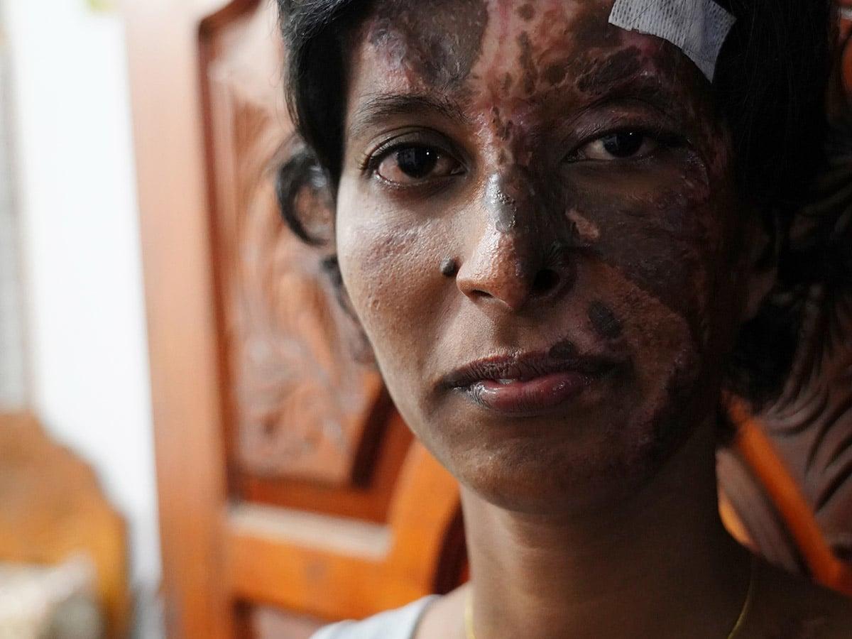 Srilankalainen naiskristitty kasvot vahingoittuneena
